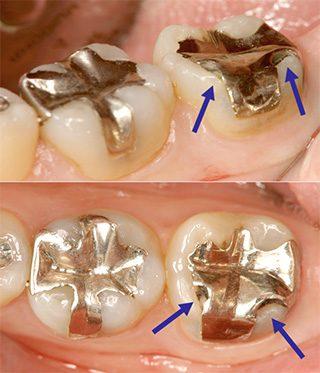 むし歯の再発