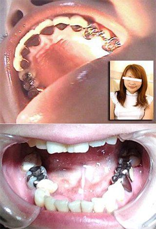 金属の歯は目立ちます